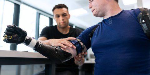 Robotica per la salute, tre progetti per il recupero delle funzionalità motorie in persone amputate di arto superiore